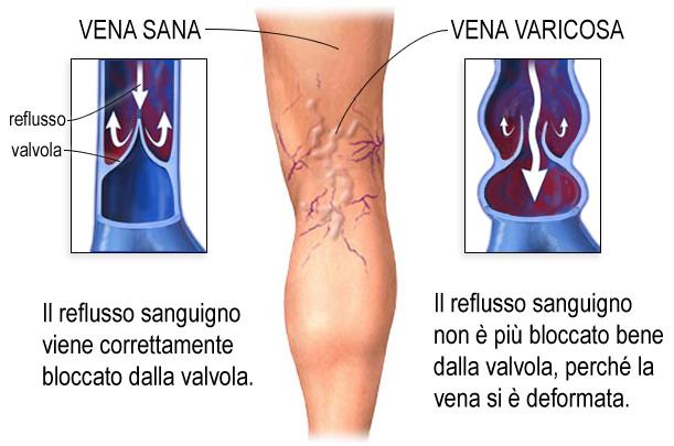 Fein Anatomie Und Physiologie Arterien Und Venen Bilder - Anatomie ...