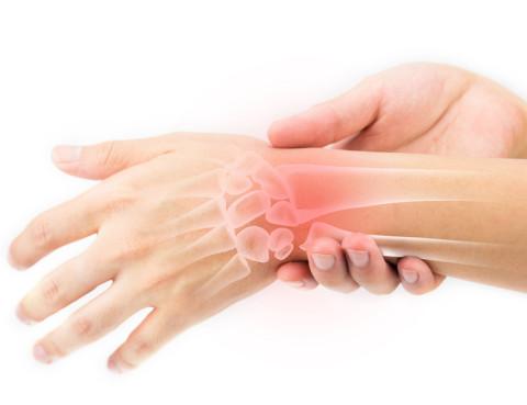 Artrire-reumatoide